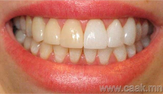 Шар шүд