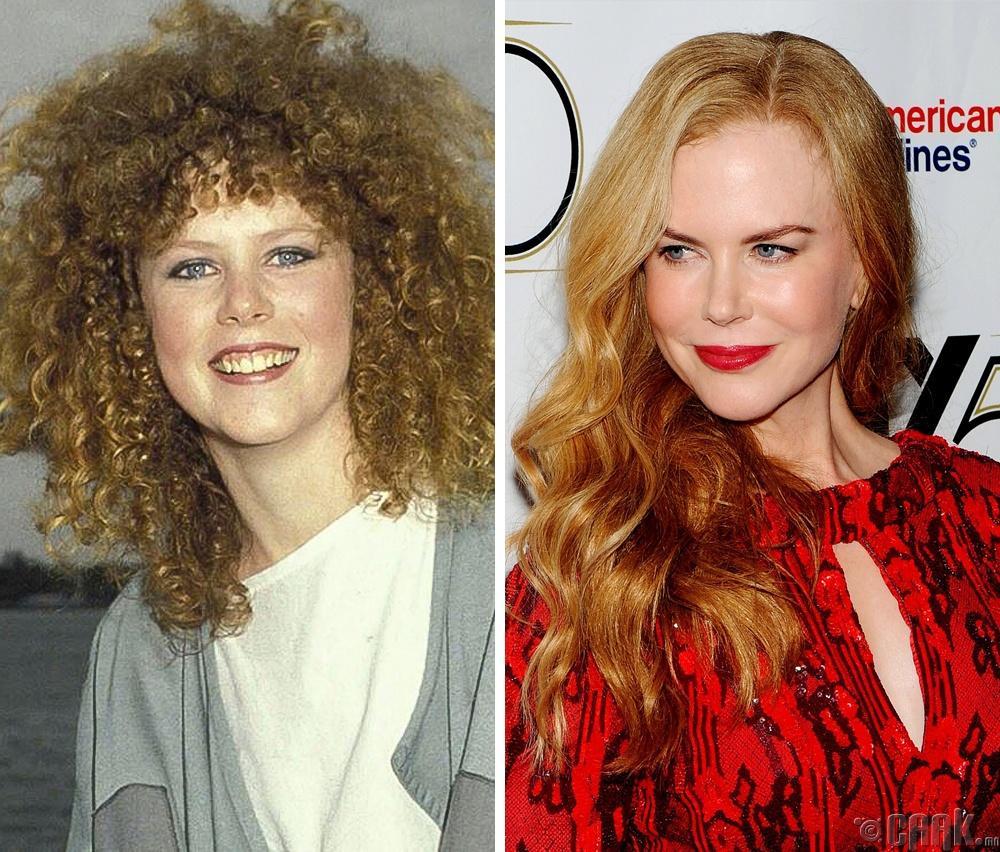 Николь Кидмэн (Nicole Kidman), 1983 он