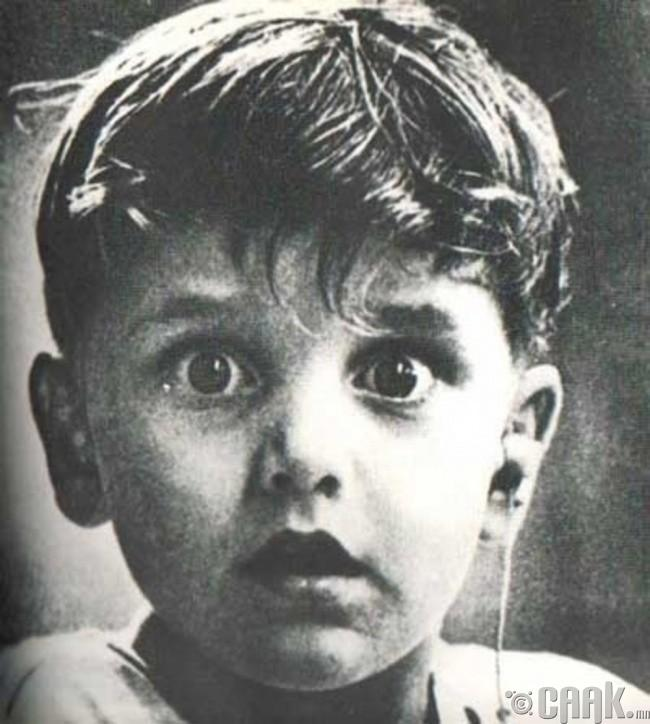 Төрөлхийн сонсголгүй Харолд Виттлз сонсох аппаратын тусламжтайгаар анх удаа дуу чимээ сонсож байна.