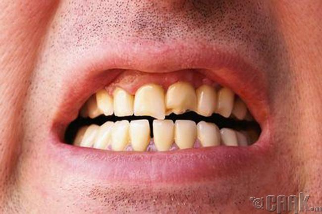 Шүд гэмтээнэ