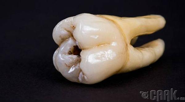 """""""Хүний шүд"""""""