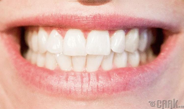 Шүдний өвчин