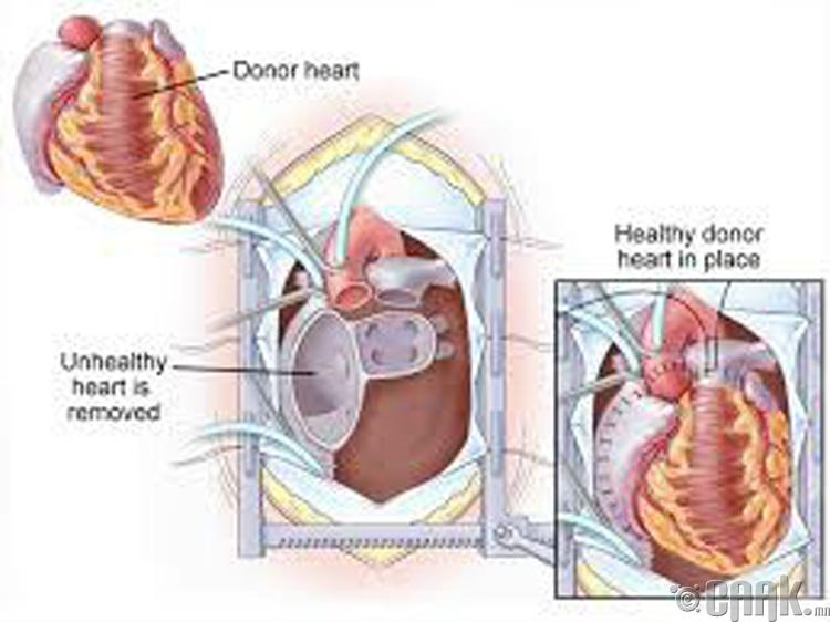 Зүрх шилжүүлэн суулгах- 997,000 доллар