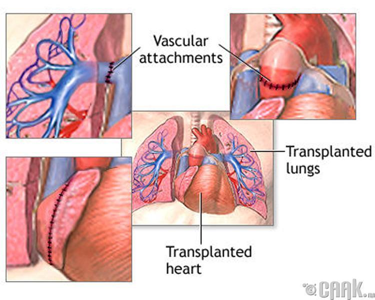 Зүрх- уушиг шилжүүлэх- 1,148,400 доллар