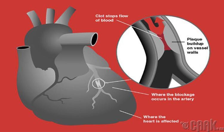 Зүрхний шигдээс өвчин