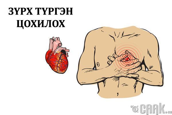 Зүрхний цохилт түргэсэх