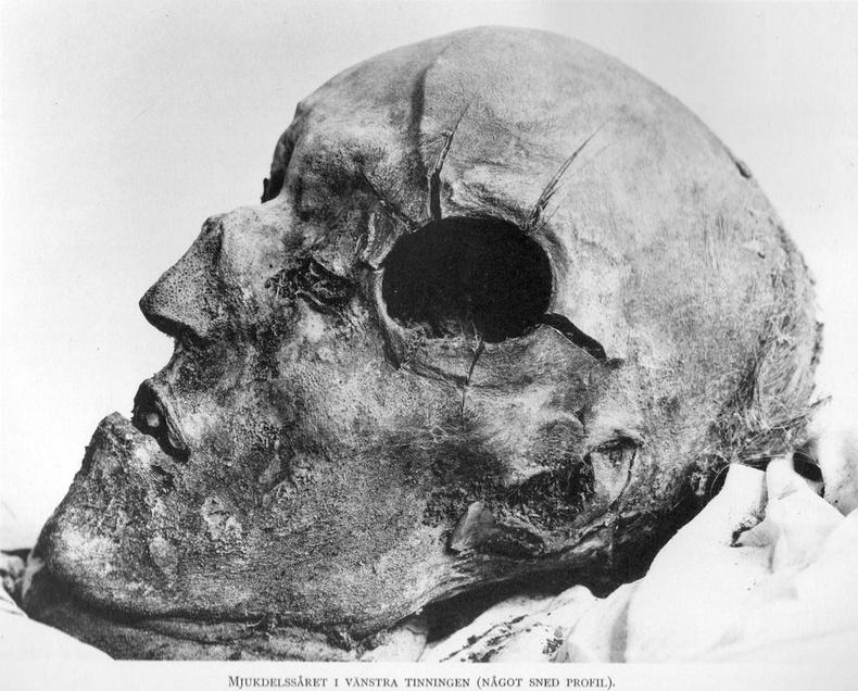Шведийн хаан XII Карл толгойдоо буудуулан алагджээ