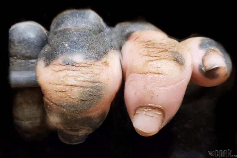 Арьс цайрах өвчтэй гориллын гар