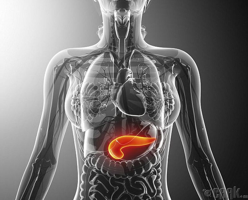 Нойр булчирхайн архаг үрэвсэл /Chronic pancreatitis/