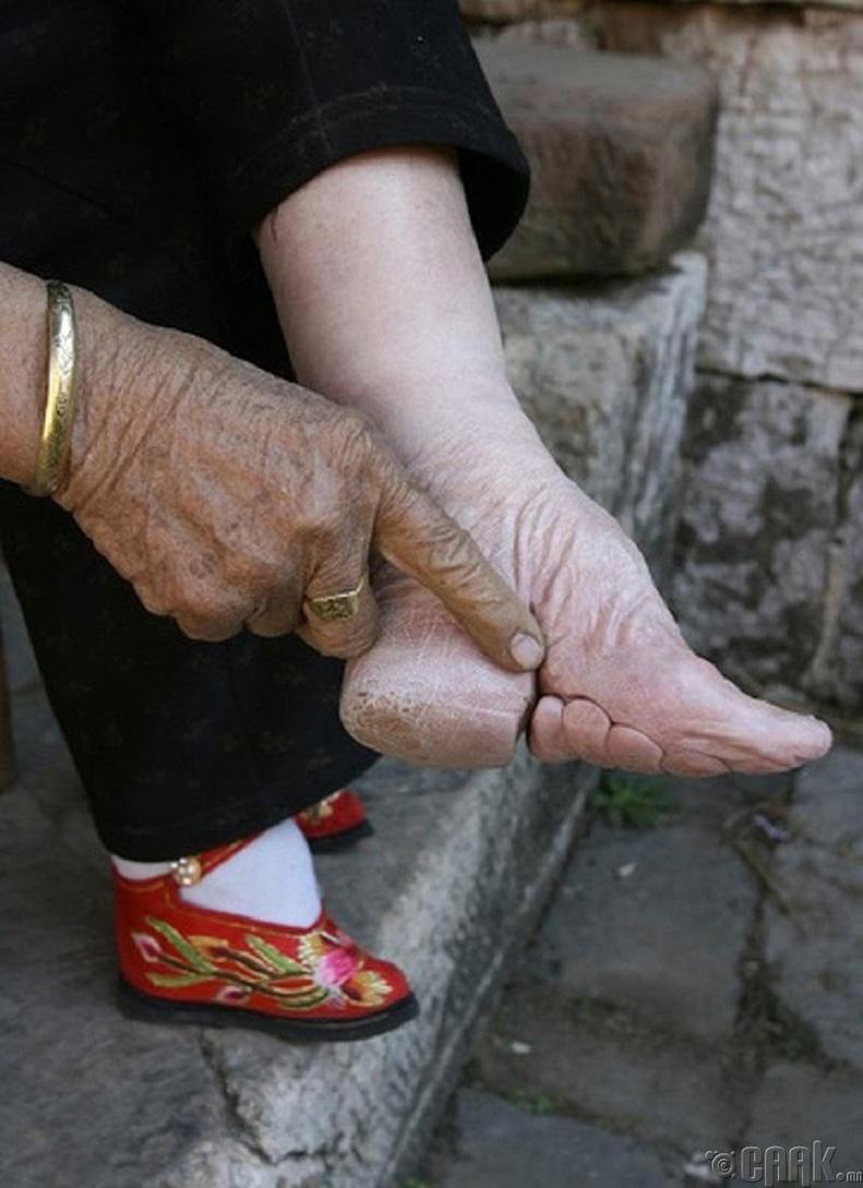 Гоо сайхны үүднээс хөлийг нь боодог