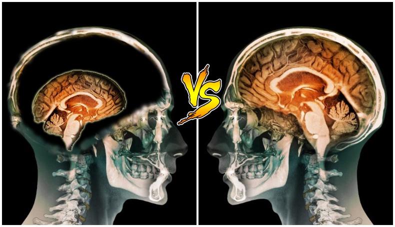 Хүний оюун ухааны чадвар тархины хэмжээнээс хамааралтай юу?