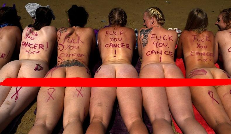 Ирланд бүсгүйчүүд хавдрын эсрэг бүрэн нүцгэлжээ