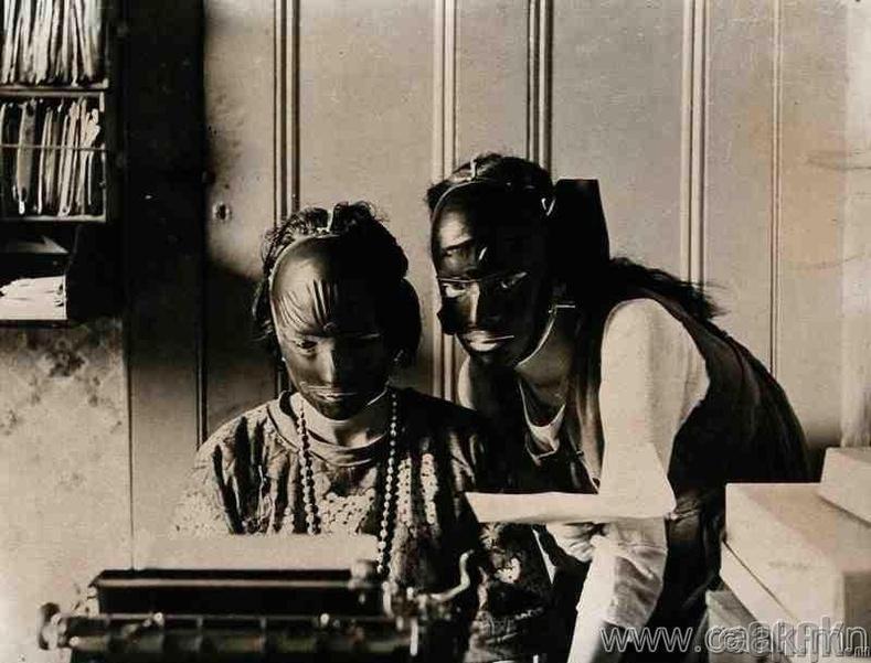 """Үрчилээ болон арьсны өө сэвээсээ салахын тулд өмсөж байсан резинэн """"гоо сайхны"""" маск. 1921 он."""