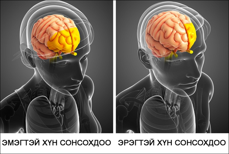 Эрэгтэй, эмэгтэй хүмүүсийн сонсох чадвар хоорондоо ялгаатай байдаг