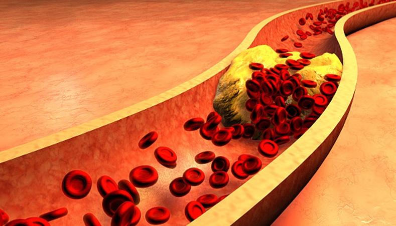 Артерийн судас бөглөрсөн үед биед ямар шинж тэмдэг илэрдэг вэ?