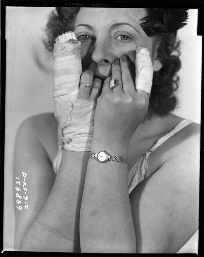 Дээрэмдүүлж гэмтсэн эмэгтэй, 1950