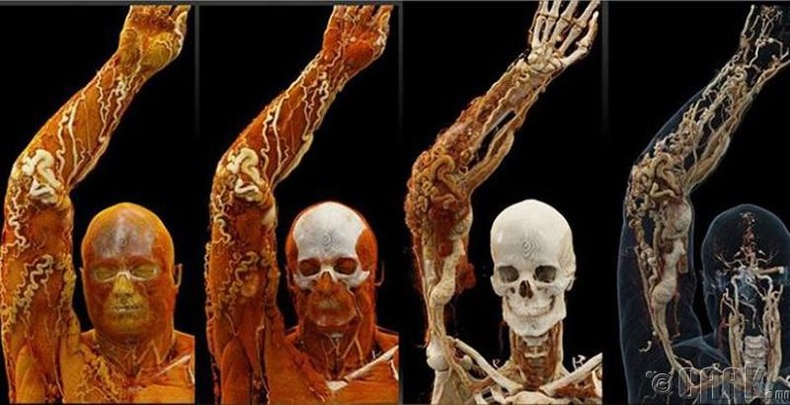 Өөр өөр рентген төхөөрөмжинд хүний биеийн харагдах байдал