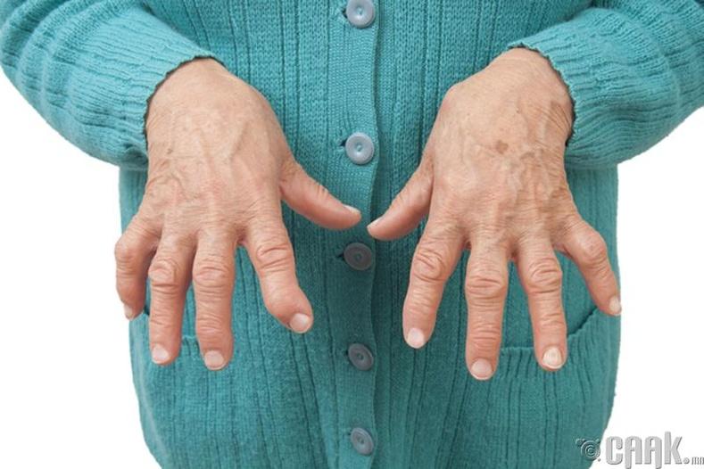 Ревматоид артрит