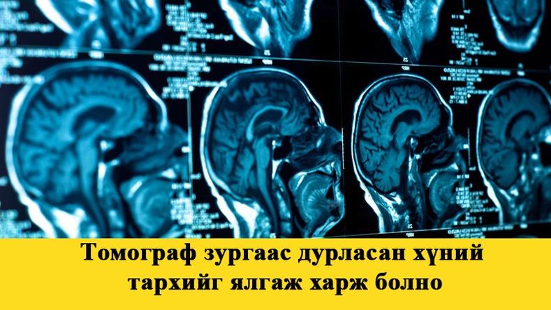 Хүний тархины тухай гайхалтай 10 баримт