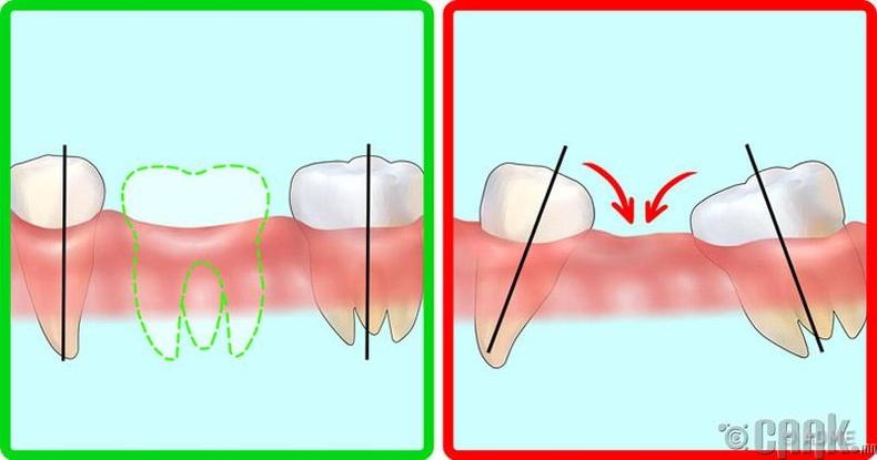 Удаан хугацааны турш шүдгүй явах нь ямар хортой вэ?