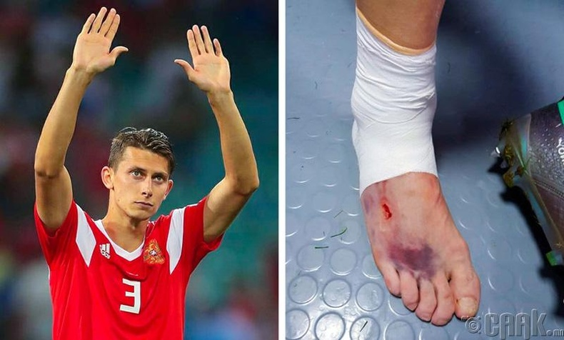 ДАШТ-ий үеэр хөлбөмбөгч Илья Кутепов бэртэлтэй хөлтэй 100 минут тогложээ