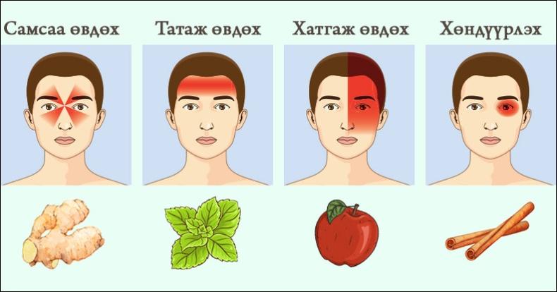 Толгойн өвдөлтийн шалтгаанууд болон түүнийг эдгээх аргууд