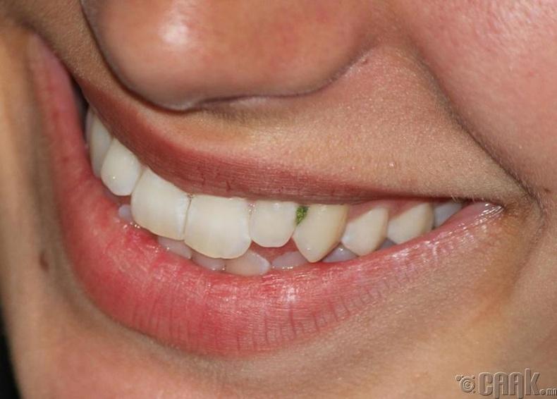 Шүдний завсар дахь хоолны үлдэгдэл