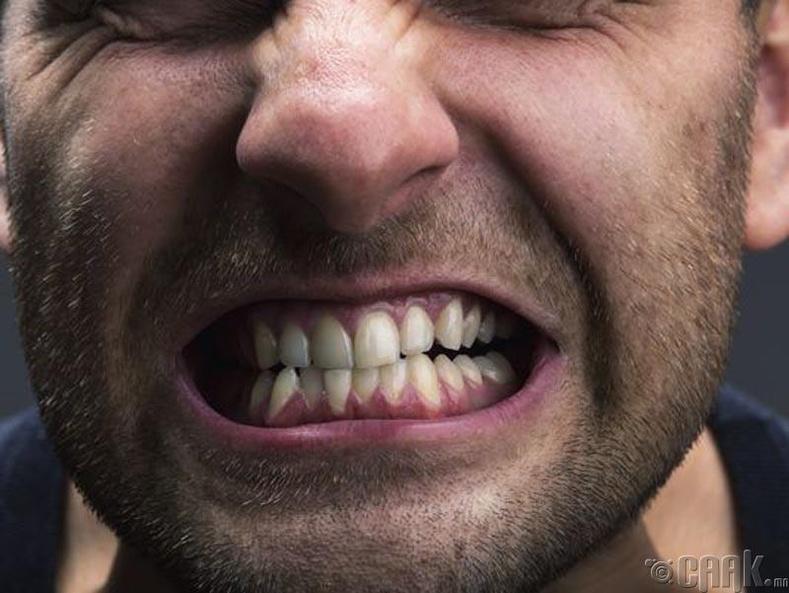 Шүдээ хавирах