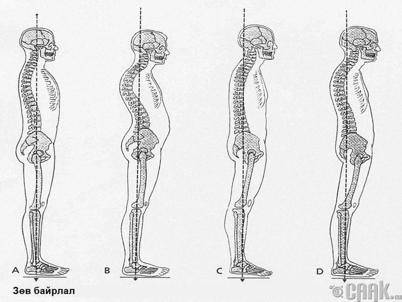 Цэх нуруутай хүмүүс, нурууны гажиггүй байдаг гэдэг нь буруу ойлголт