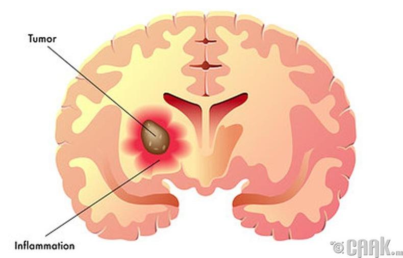 Тархины хорт хавдар