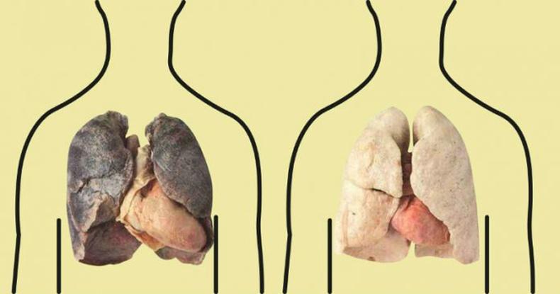 Уушгиа гэрийн нөхцөлд хэрхэн цэвэрлэх вэ?