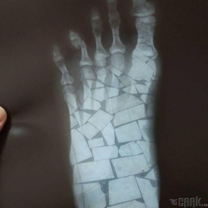 Туршлагагүй хүн рентген зураг авбал ийм зүйл болдог.