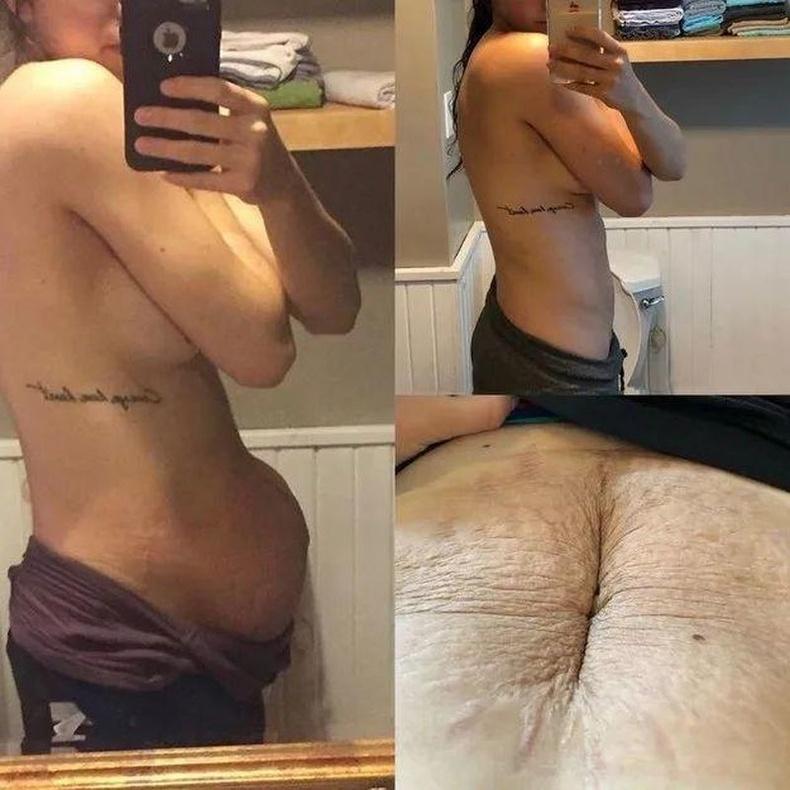 Төрснөөс 5 хоногийн дараа (зүүн), дөрвөн сарын дараа (баруун)