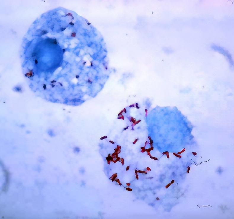 Хижиг (Typhus)