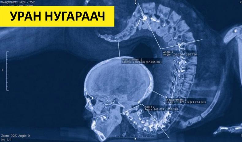 Хүний биеийн талаар ихийг өгүүлэх сонирхолтой рентген зургууд