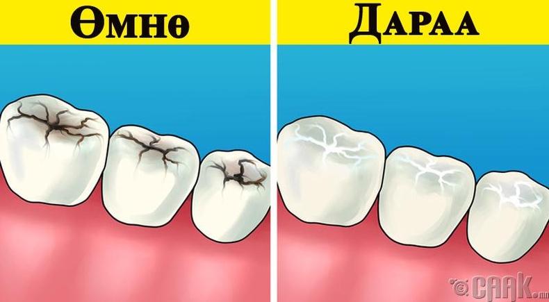 Шүд цоорох гэж юу вэ? Яагаад хамгаалах түрхлэг түрхэх хэрэгтэй вэ?
