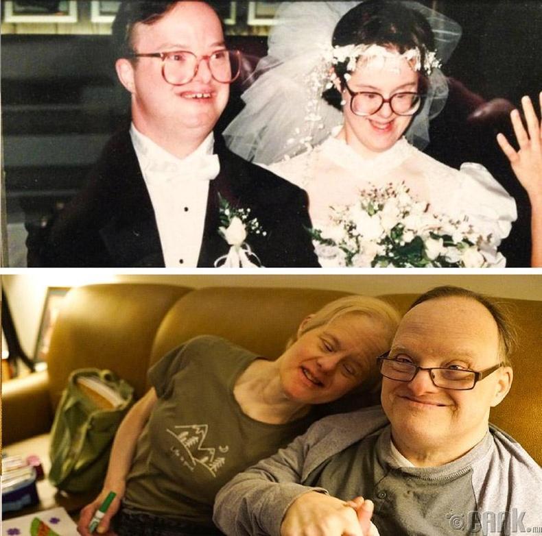 Дауны синдромтой хос хоёр 25 жилийн өмнө гэрлэж байжээ