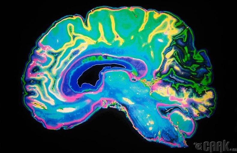 Оюун ухааны хомсдолтой болох эрсдэл бага