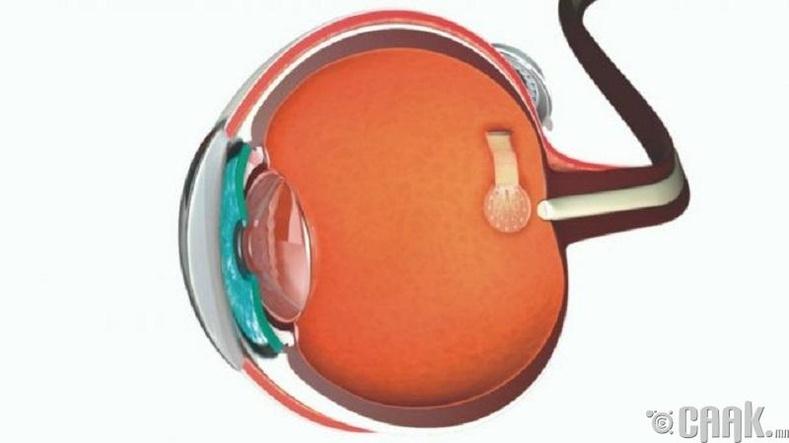 Графин харааны линз буюу электрон нүдний торлог бүрхэвч