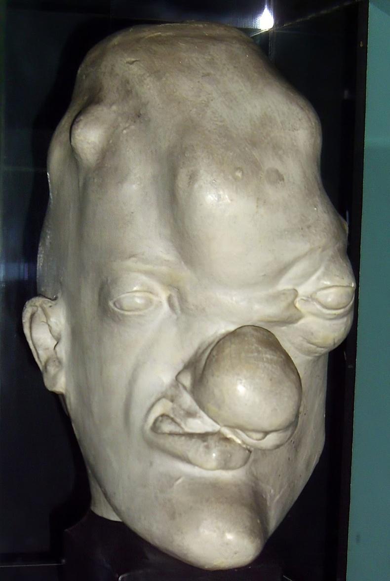 Тэмбүү (Syphilis)