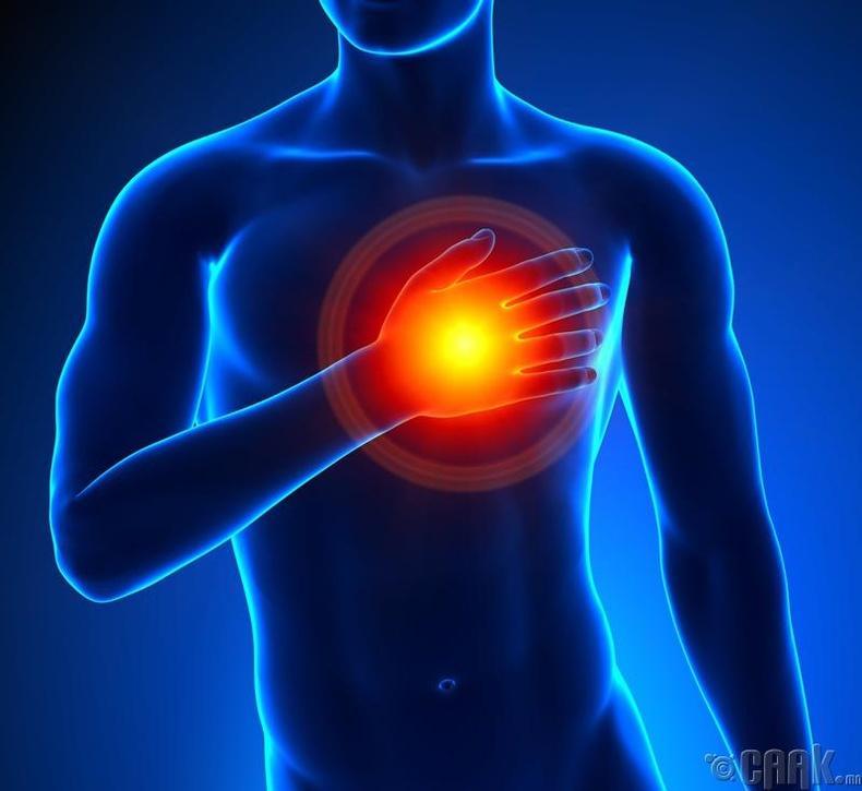 Зүрхний шигдээс тусах магадлалыг нэмэгдүүлдэг