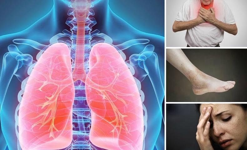 Уушги өвчилснийг илтгэх аюултай шинж тэмдгүүд