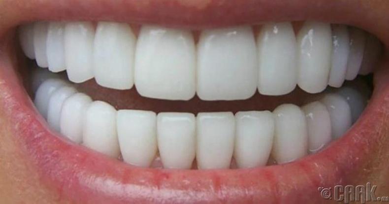 Шүдийг цайруулж, бэхжүүлнэ