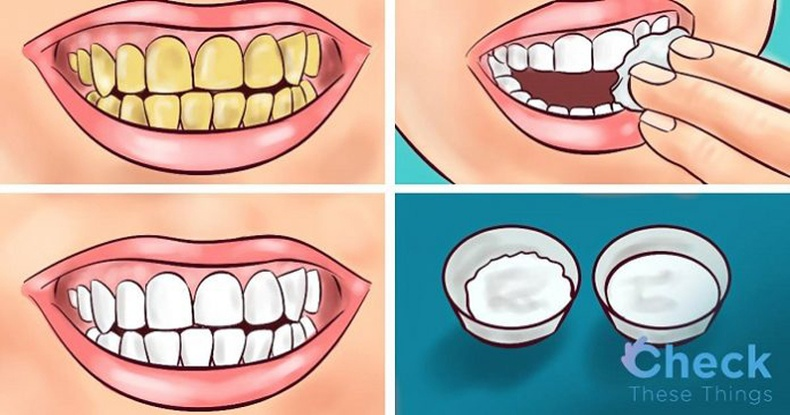 Үүгээр угаагаад, шарласан шүдээ 2 минутын дотор цайруулаарай!