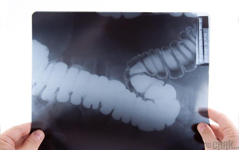 Өвчтөний рентген зургийг интернетэд тавьсан