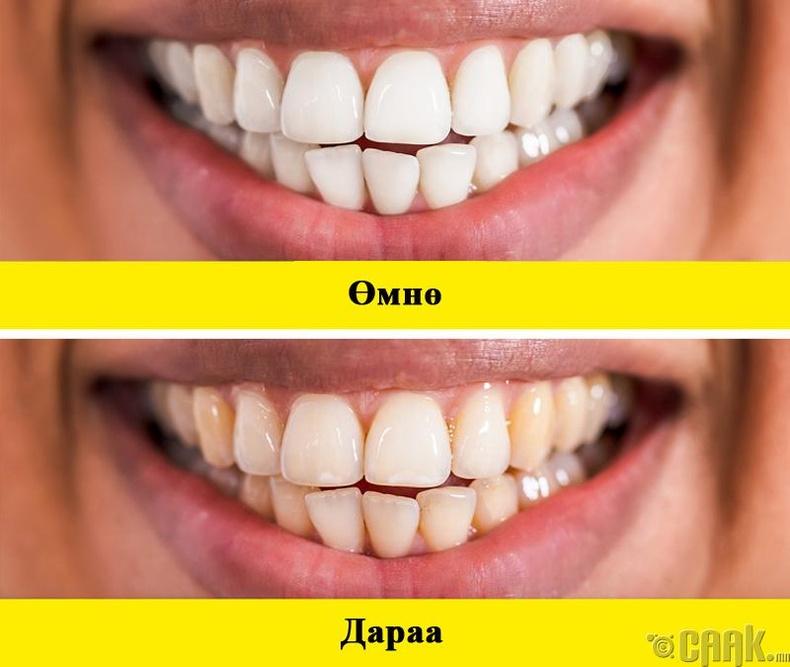 Шүд шарлах