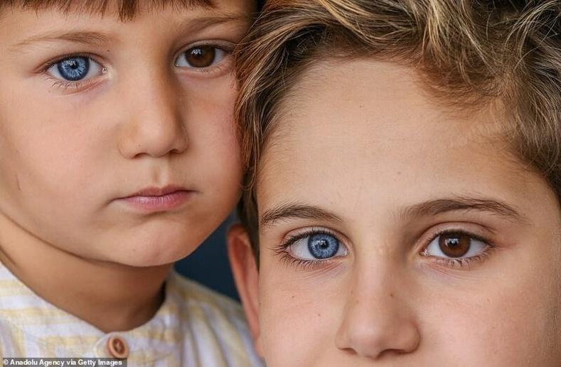 Хоёр нүд нь тэс өөр өнгөтэй ах дүүс