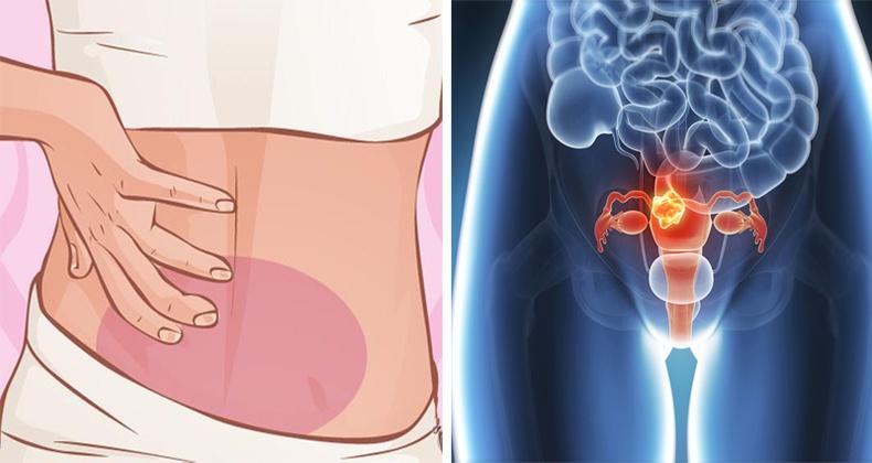 Савны хорт хавдрын үед илрэх шинж тэмдгүүд