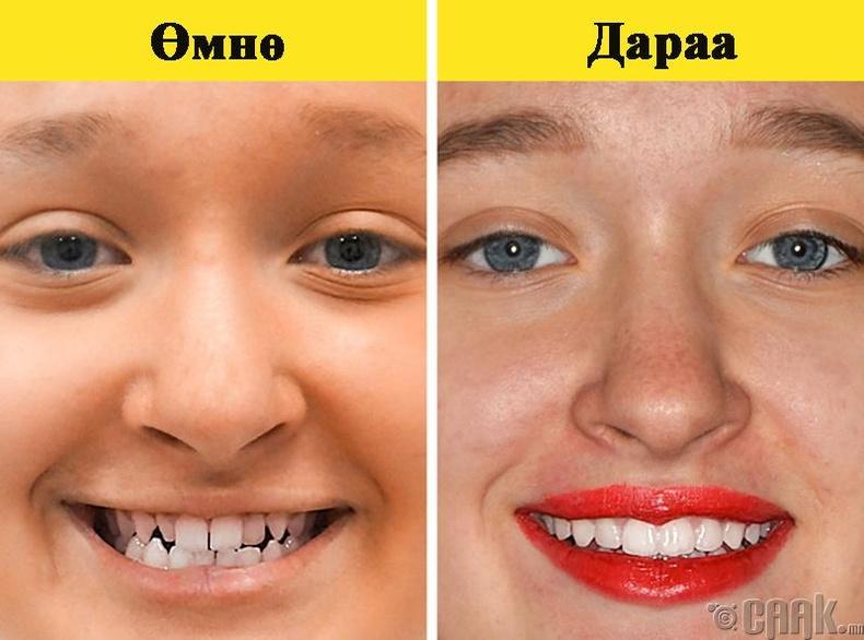 Шүдний аппарат шүд гэмтээдэг үү?