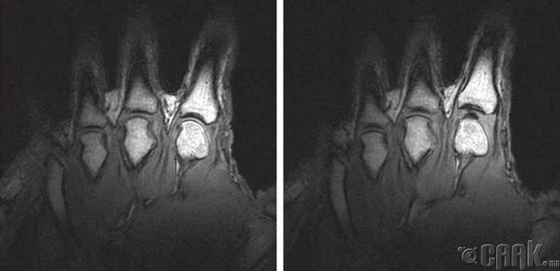 Хуруугаа дуугаргахад яагаад чанга сонсогддог вэ?